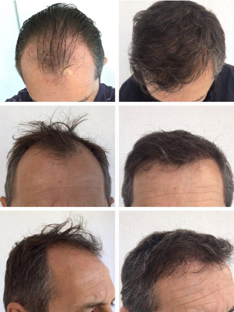 Trapianto capelli costo Ungheria - Trattamento di alta qualità a prezzi turchi!
