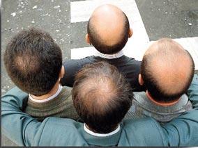 Calvitie vertex - greffe de cheveux