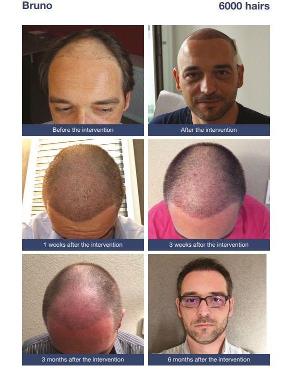 Stempiatura uomo e diradamento capelli
