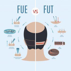 Microgreffe de cheveux par FUE ou FUT bandelette pour calvitie