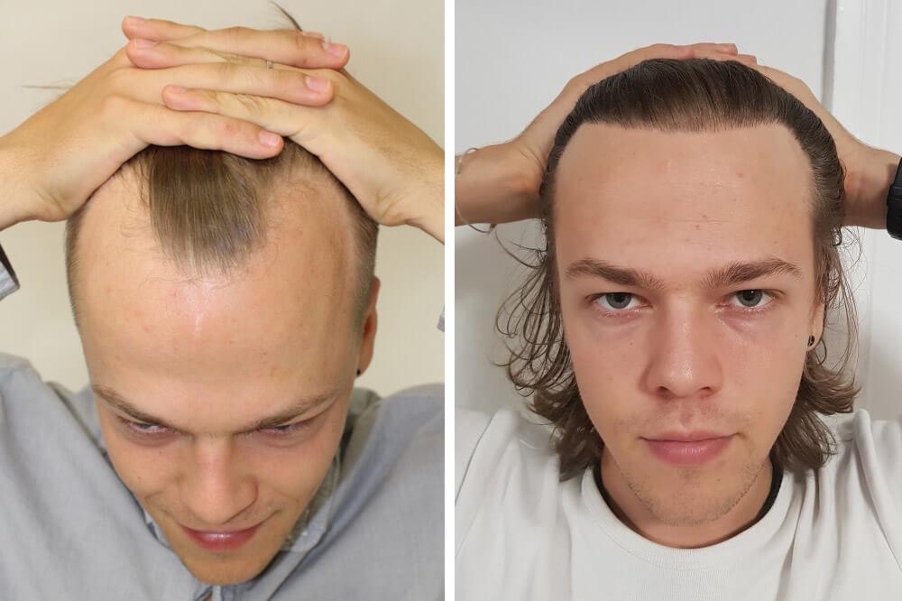 Greffe de cheveux - Solution pour calvitie frontale et vertex