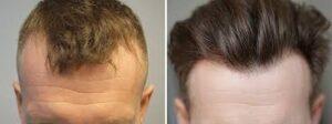 Photos avant / après de greffe de cheveux
