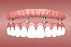 Implant dentaire bouche complete prix - Budapest, Hongrie